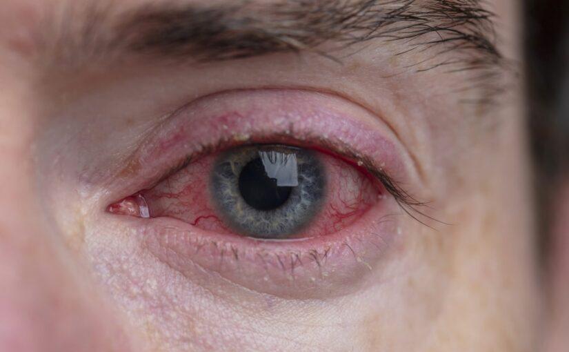 Le CBD donne t'il les yeux rouges ?